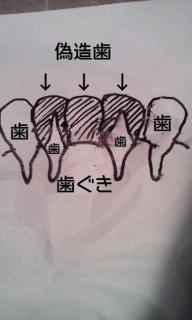 差し歯と入れ歯の違い�@